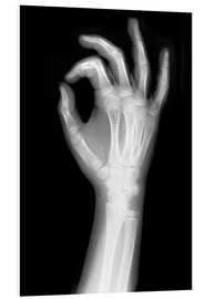 Forex  X rayed OK sign