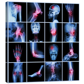 Stampa su tela  Human joint, arthritis and stroke