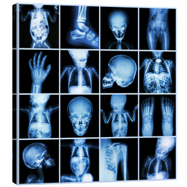 Tela  Xrays of a child body