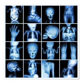 Poster Premium  Xrays of a child body